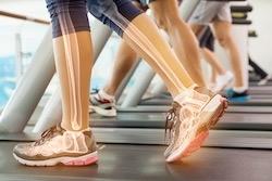 Bewegung gesunde Knochen